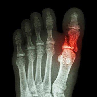 broken-toe-s5-diagnosed